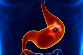 揪出潜伏的胃肠肿瘤