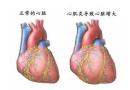 宁波一姑娘查出了心肌炎,肚子疼也可能是心脏问题