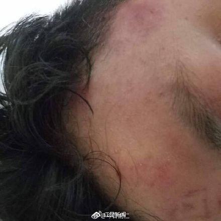 贵州两名老师醉酒打学生 一人伤重仍在重症监护室