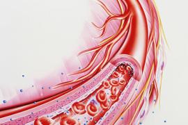 忽视6个细节你的血管早晚堵 引来脑中风冠心病