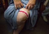 女子被烫伤花45年接受自己身体,如今敢穿露背泳衣