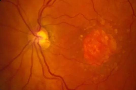 谷歌与Verily发布新研究,可通过视网膜图像用AI检测心脏病