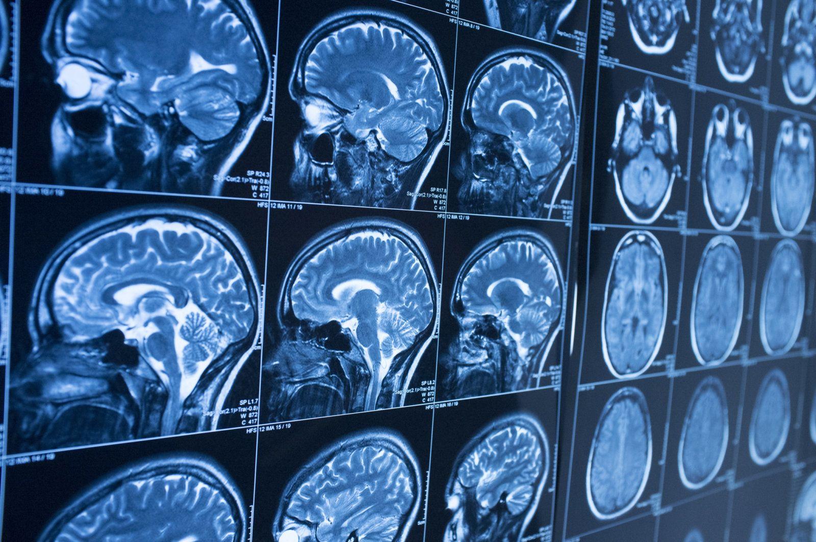 人工智能技术新技能 可以提前10年发现老年痴呆症