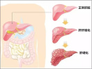 哈尔滨女子每月染发一次 十年后得了肝硬化