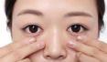 世界杯期间青岛干眼症患者增两成 医生:严重可致盲