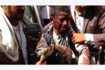 也门空袭事件致40名儿童死亡 美媒:弹药来自美国