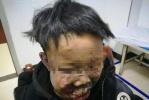 13岁少年燃放鞭炮 面部炸成重伤